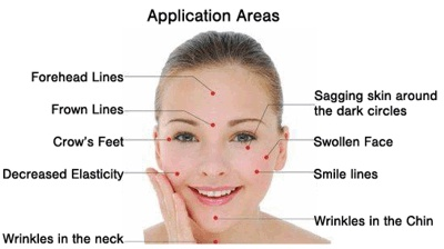 Picture of benefits of Facial Rejuvenation Acupuncture