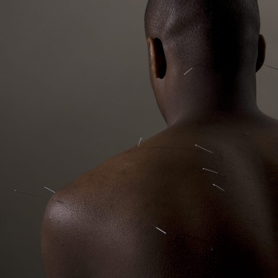 Rich results of Googles SERP showing acupuncture for back and shoulder pain